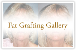 Fat Grafting Gallery