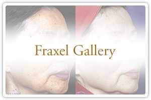 Fraxel Gallery