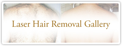 Laser Hair Removal Gallery