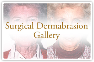 Surgical Dermabrasion Gallery